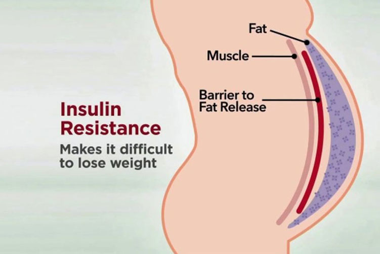 Reduced Insulin Resistance