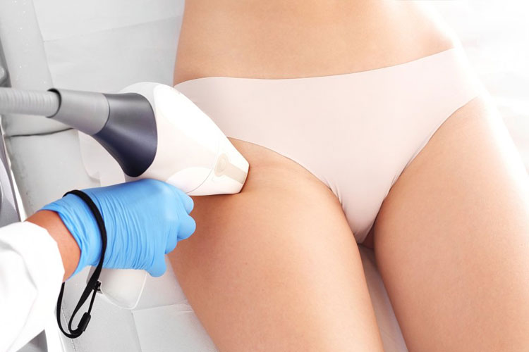 Laser Hair Removal for Undesirable Hair